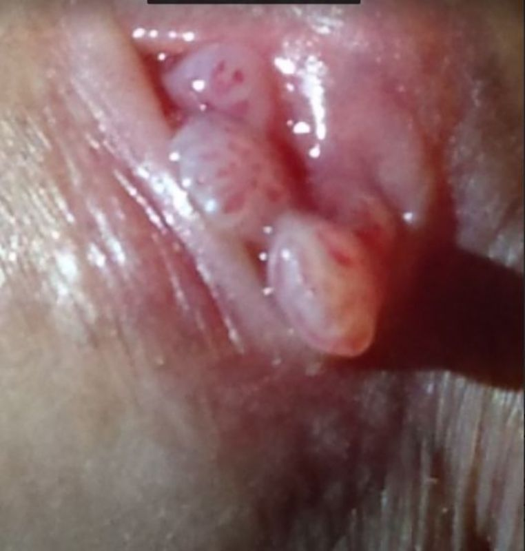 Genital in picture vagina wart