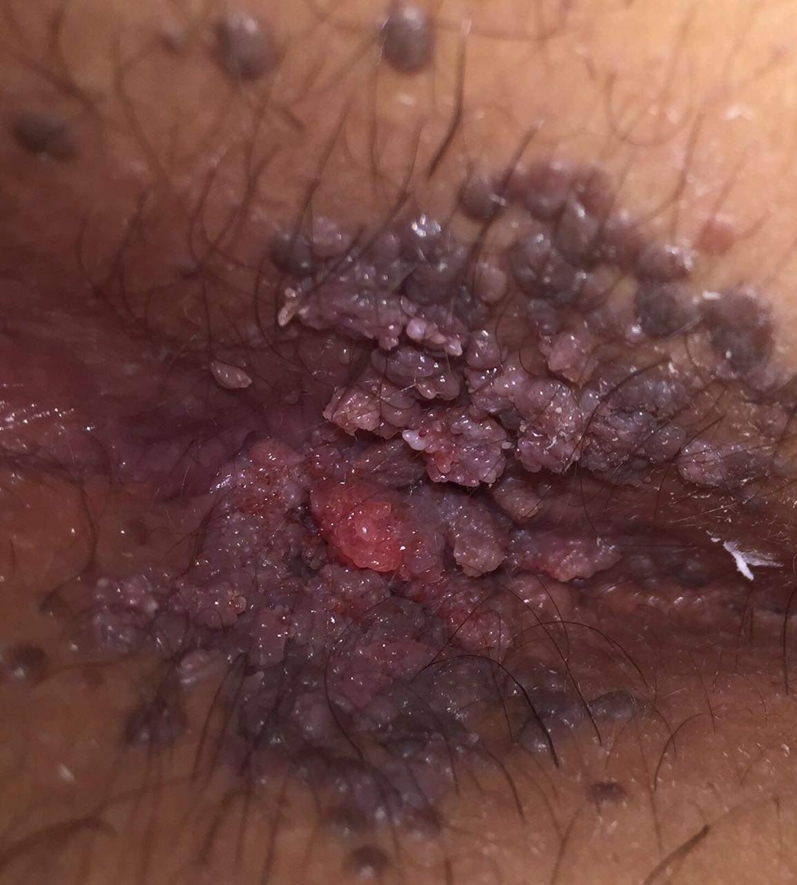1 anal warts  befor treatment