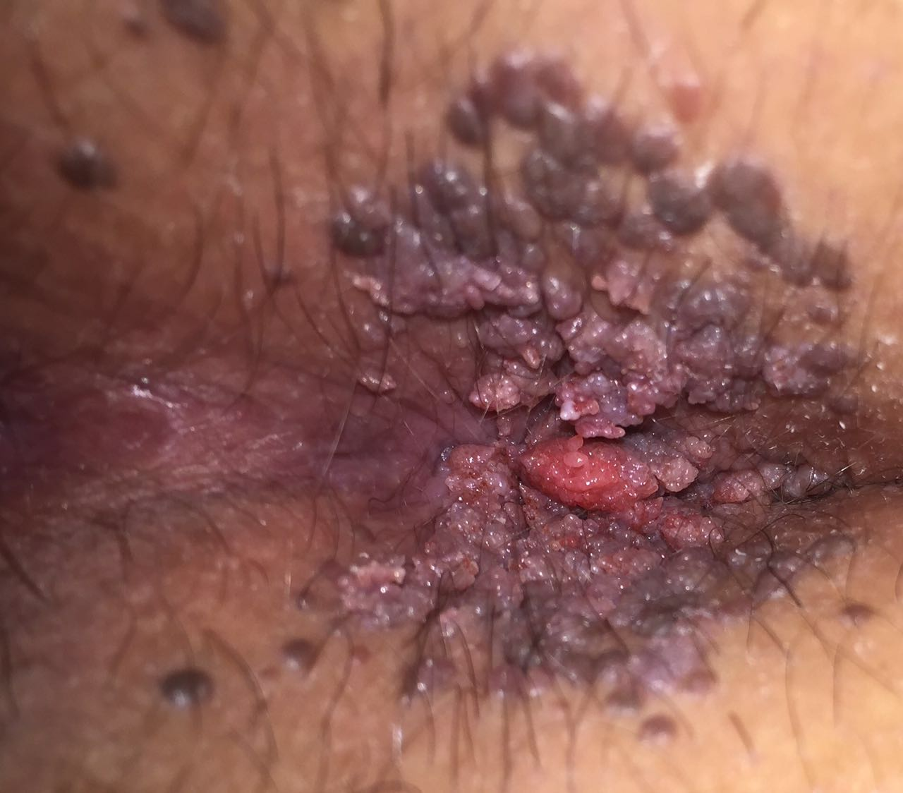 anal warts  befor treatment2