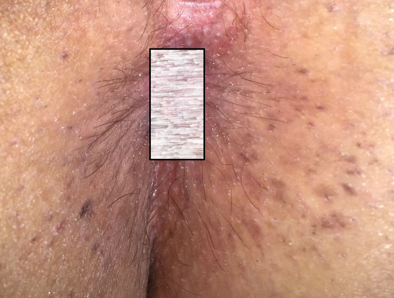 anal warts  after treatment