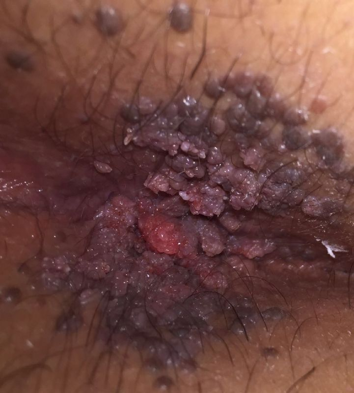 Warts pictures genital penis